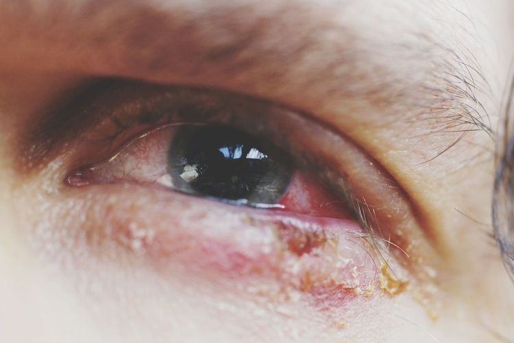 Close-up of sore eye