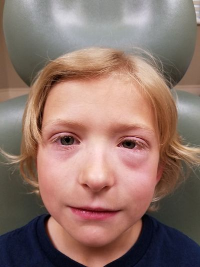 Allergy Allergic Swollen Eyes Boy Child Children Only People Headshot Looking At Camera Portrait One Person Human Face Childhood