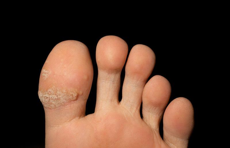 Close-up of injured barefoot against black background