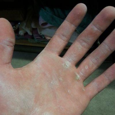 Weightlifters hands, badges of honour. Always on that grind :D Crossfit Fitness Strongman Strength Crossfitaustralia