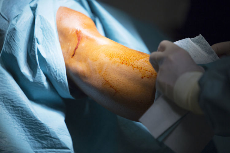 Cropped hand of surgeon operating patient at hospital