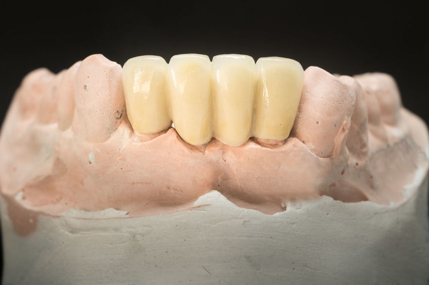 ceramic crown and bridge of lower front teeth Crown Dentist Dentistry Porcelain  All Black Background Bridge Ceramic Ceramics Close-up Crowns Dental Health Dentist Denture Dentures Front View Healthcare And Medicine Human Body Part Human Teeth Model - Object People Prosthetic Equipment Studio Shot Teeth Toothy Smile