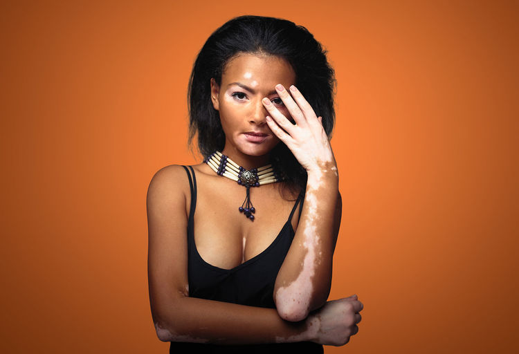 Beautiful young African girl with vitiligo skin problem Studio Shot One Person Indoors  Front View Young Adult Women Young Women Hairstyle Waist Up Orange Background Portrait Hair Looking At Camera Beauty Casual Clothing Orange Color Beautiful Woman Contemplation Woman Vitiligo Skin Skin Problems Hands On Face Pigmentation Healthcare And Medicine