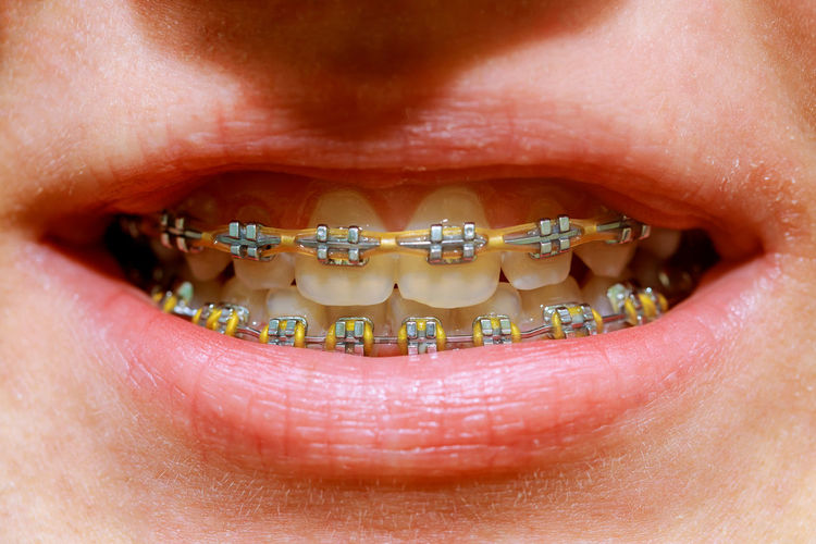 Close-up of person wearing braces
