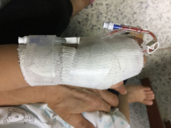 a girl hand covered by white cloth Architecture Hospital Red Tube Blood Child Cloth Coverd Girl Hand Human Body Part Hurt Treat White