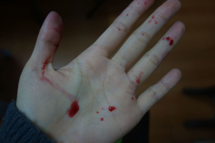 Cropped image of hand with blood