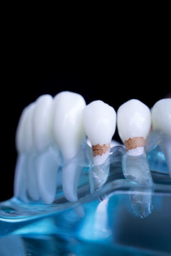 Close-up of dentures in water against black background