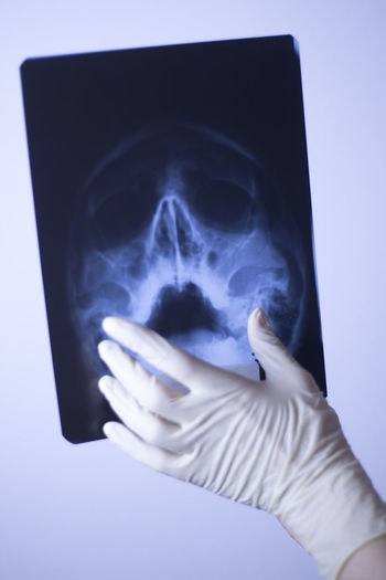 Cropped hand of person pointing at x-ray image on table
