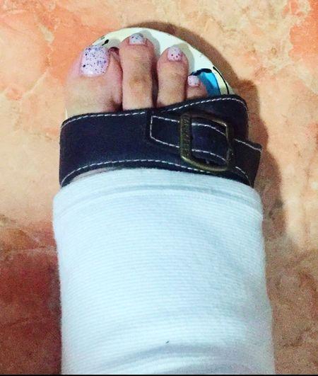 👣n0t s0 Happy Foot‼️ Ready f0r w0rk⁉️ Injuryproblems Swollenfoot Workprobs Tuesdayblues