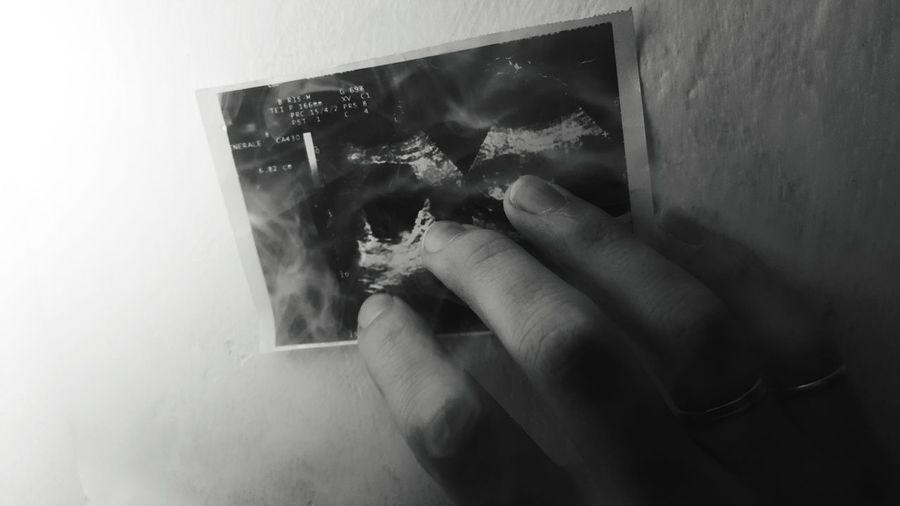 Smoke Radiography Radiographer Radiographie Reflection Person Young Adult