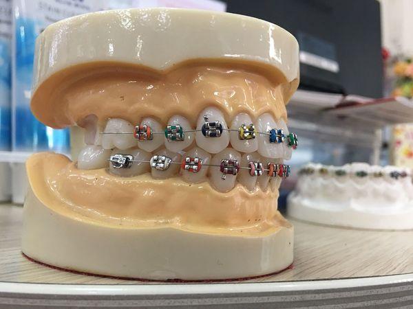 Dental clinic Sweet Food Food And Drink Close-up No People Indoors  Table EyeEm Selects Teeth Dentist Dental Health Model Oral, Teeth Model