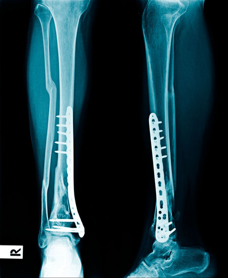 Fixation Anatomy Black Background Bone  Care Fracture Healthcare And Medicine Human Body Part Human Bone Human Joint Human Knee Human Limb Human Skeleton Joint - Body Part Limb Medical Exam Medical X-ray People Physical Injury Science Skeleton Technology Wrist X-ray Image