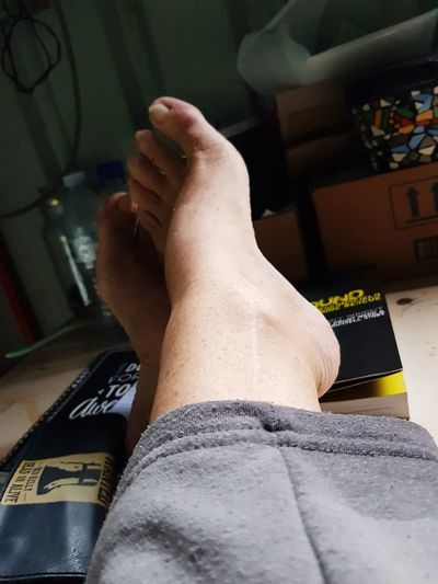 feet, scars and