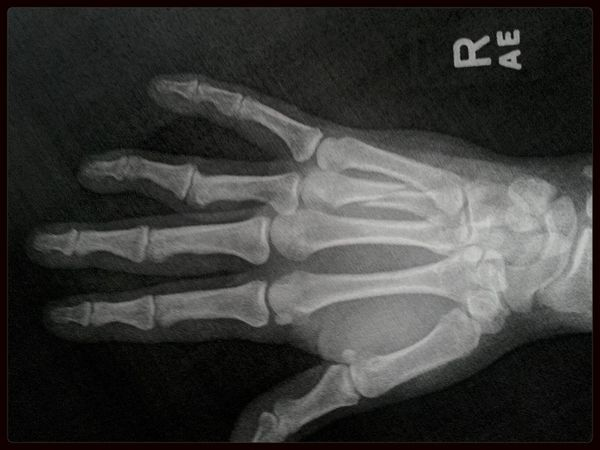 My very broken hand Broken Xray Painful!!!!