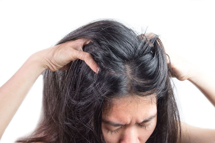women head with dandruff Caused by the problem of dirty. Or caused by skin disease or Seborrheic Dermatitis. It has white scaly and it will cause itch. Dandruff HEAD Head And Shoulders Hair Scalp Psoriasis White Background Young Adult Females Seborrhea People person Health Care Skin Dirty Sickness Scaly Discomfort Woman Girl Greasy Through Caucasian Shampoo Medical Dry Stress Problem Backgrounds Itch Black Human Body Part Hand Illness Disease Flakes Medication Trouble Fungus Misfortune Hormonal Secretions Annoying Sebum Magnifying  Scratch Rod One Person Human Hair Portrait Black Hair