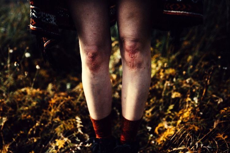 - Bruised - Showcase: January Adventure Buddies Adventure Wanderlust Morning Light Somewhere Taking Photos Foggy Morning Nature A Walk In The Woods EyeEm Nature Lover Lifestyle Socks Nature_collection Close-up Close Up Legs Skirt Poncho Morning Scratch Scratches Skin Knee Knees