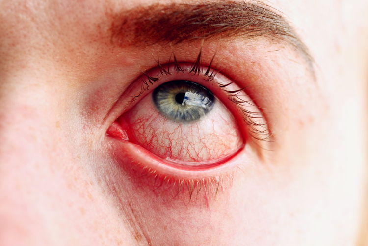 Extreme Close-Up Of Person Stretching Eye
