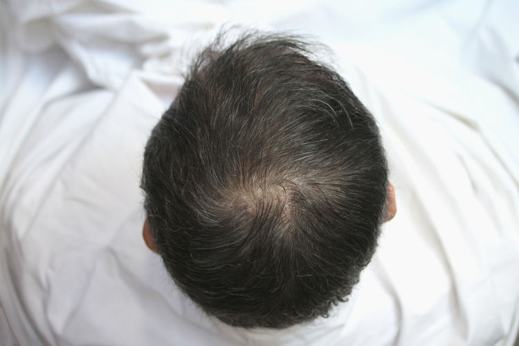 man's head from above Barbershop Bright Light Copy Space Dark Hair From Above  HEAD Hair Hairline Head Shot  Barber Close-up Coiffeur Day Grey Hair Haicut Hair Care Haircare Haircut Headshot Indoors  Man Head One Person Real People Rear View White Background
