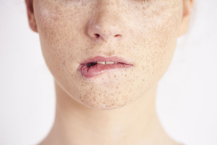 Midsection of woman with freckles on face against white background