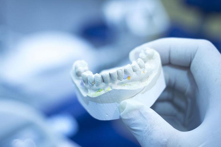 Cropped doctor holding dentures in hospital