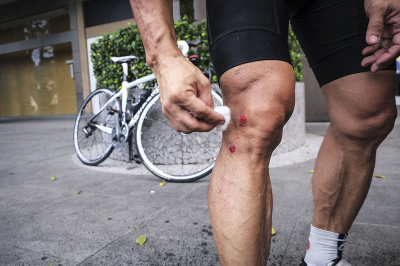 Close-up of cyclist cleaning his bruises on leg after falling from racing bike. Athletic Cyclist Injured Leg Pain Adult Athlete Bicycle Bike Bruises Close-up Cycling Day Fall Human Leg Hurt Injury Knee One Person Outdoors People Physical Injury Sport Sportsman Wounds Business Stories Visual Creativity