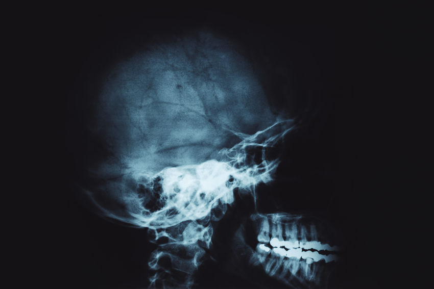 human head xray picture Black Background Doctor  Healthcare Human Body Skeleton Xray Xray View Anatomy Bitten Brain Diagnostic Exam Fracture Headshot Healthcare And Medicine Human Human Body Part Human Head Medical Medical X-ray One Person Patient People Scan Side View