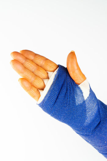freshly operated hand with blue bandage and disinfectant orange fingers Hand Operated Bandage Operation Operate Carpal Tunnel Syndrome Care Health Medicine Plastered Blue Arm Pain Patient Medical Hurt Accident Hospital Broken Emergency Aid Fracture Woman person Gauze Healthcare Treatment Healing Finger Clinic White Background Studio Shot Human Hand Indoors  Human Body Part One Person Men Cut Out Copy Space Healthcare And Medicine Close-up Physical Injury Body Part Medical Supplies Security Protection Human Limb