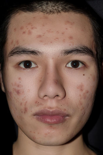 Young man with acne and pimple on the skin with brown spots, Acne on the face caused by Hormone or grime and bacteria, The scars and wrinkle and acne inflammation on the face skin. Irritation Scars Ugly Acne Acnes Face Grime Headshot Hormone Human Body Part Human Face Oily Pimples Portrait Scary Skin Skin Care Skincare Smooth Teenager Treatment Treatments Wrinkled Wrinkles Young Adult