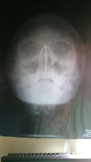 mexD Radiografia That's Me Photo
