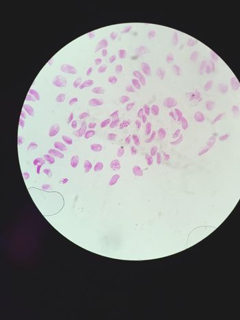 Onion cell Mitosis Division Cell Cycle Autosome Cell