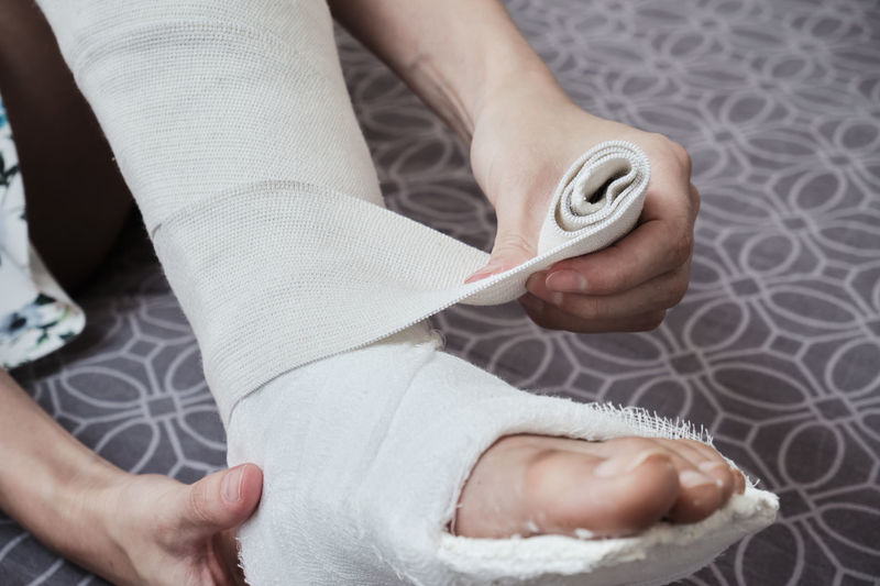 Applying an elastic bandage to a broken leg. the leg is in a plaster cast.