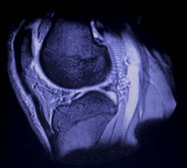 Mri Knee Meniscus Scan Leg Resonance Medical Image Injury X-Ray Diagnostic Xray Medicine Joint Magnetic Hospital Surgery Sport Ct Tomography Doctor  Health Results Healthcare Ray Mrt Joints Technology Imaging Magnet Test Broken Tear Torn Clinic Examination Magentic Anatomy Human Posterior Horn Medial Anteior White Zone
