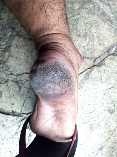 Close up cracked heel Heels Cracked Care Detail Texture Health Healthy Crack Foot Dirty Men Close-up Low Section Men Human Leg Close-up Leg Feet