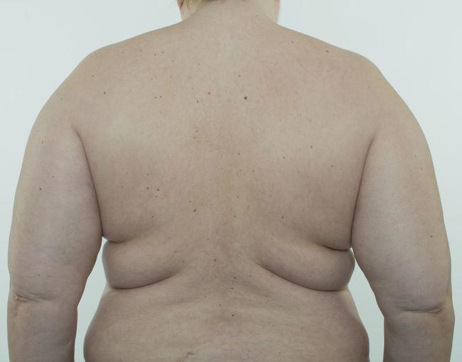 Woman making diet BBW* Diet Obesity Woman Abdomen Bra Cellulite Centimeter Fat Female Food Health Human Large Measure Overweight Pretty Rounding Underwears Weight