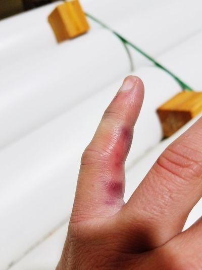 Hand Brokenfinger Bruised My Hand Pinkyfinger Onthejob
